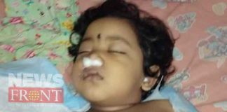 Death of child due to negligence of treatment