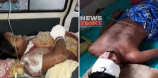 two injured hit of arms