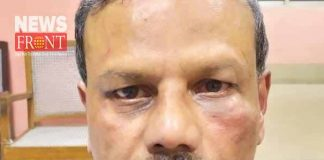 dunker attack to doctor in durgapur | newsfront.co